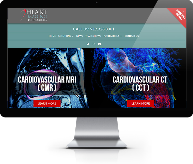 Heart Imaging Technologies